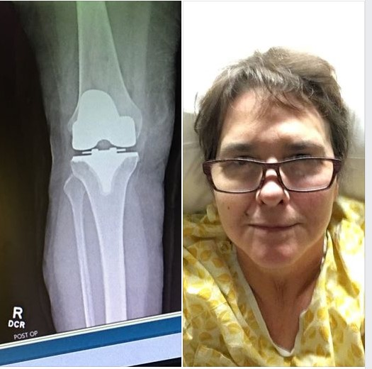 On the left, an X-ray of a titanium knee replacement; on the right, Liz Danforth in a hospital bed selfie.